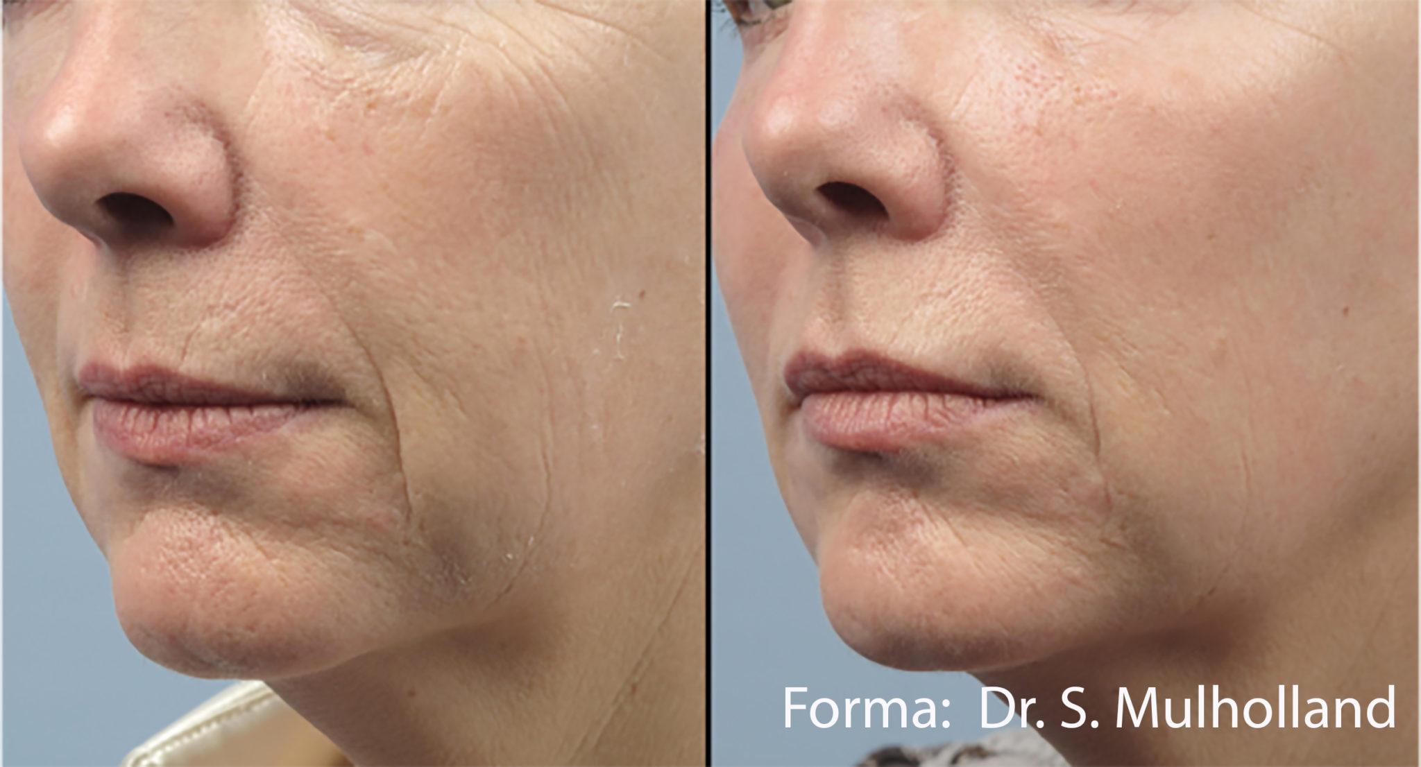 Forma Plus Laser Skin Tightening Royal Tunbridge Wells Kent Uk