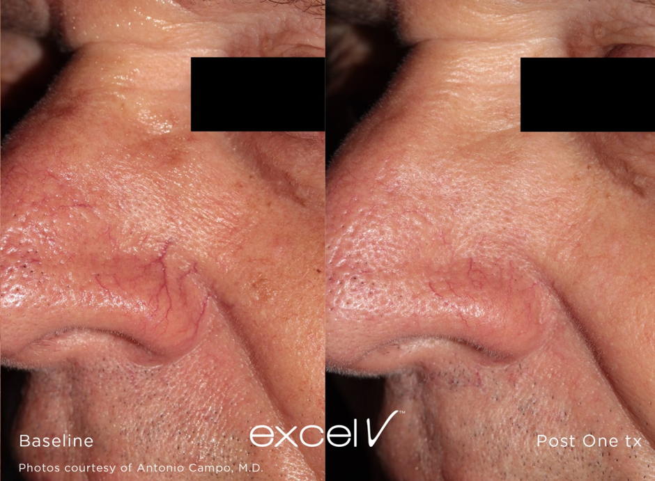 Thread Veins Facial Redness Treatment Royal Tunbridge Wells UK