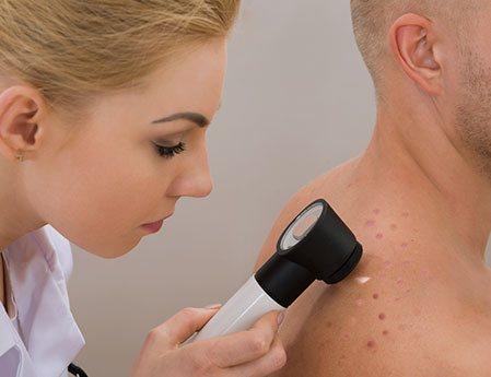 mole-skincancer
