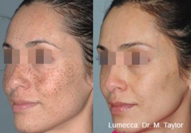 Hyperpigmentation Brown Spots Melasma Royal Tunbridge Wells UK
