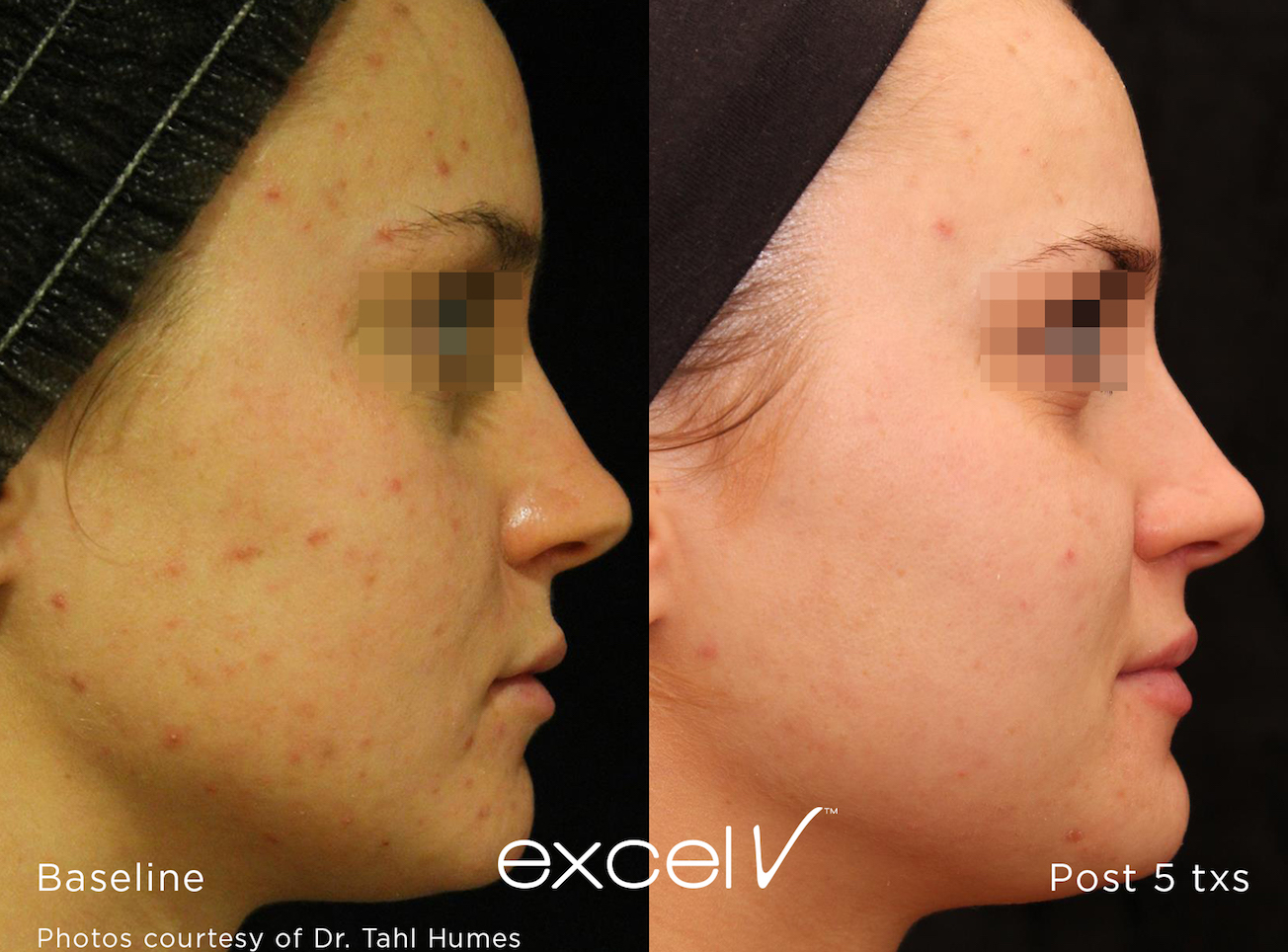 Excel V Laser For Veins And Pigmentation Royal Tunbridge