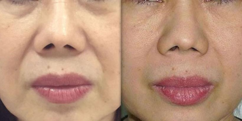 Fotona Laser Skin Tightening Royal Tunbridge Wells Kent UK